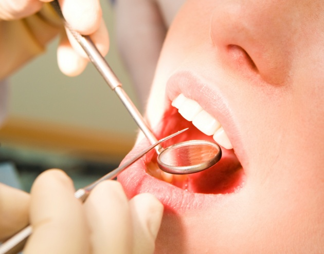 HD dental health check for pictures download