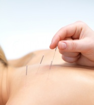 Acupuncture pictures HD download