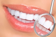 Teeth whitening HD pictures